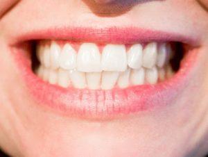 Kunyit Untuk Memutihkan Gigi Secara Alami Sehat Medic